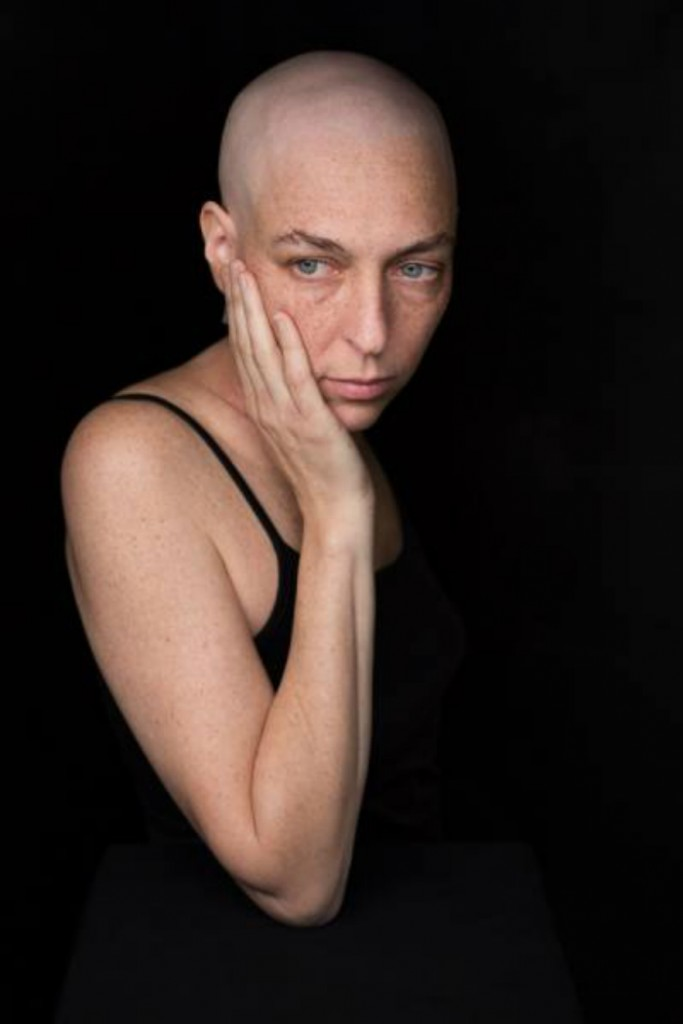 one_eyeland_facing_chemo_by_robert_houser_109277